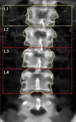 AP spine